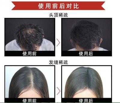 当头发稀头发少遇到苏玫氏头发纤维粉,不得不低头