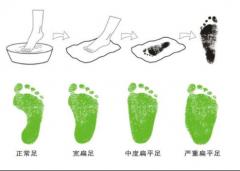 足弓异常多留意,严重扁平足还需穿矫正鞋