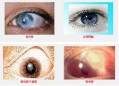 我用华络倍睛彩低频护眼仪治好偷走视力的青光眼